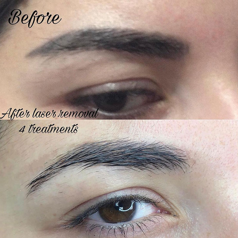 Permanent makeup and tattoo removal by Ecaterina Cioban